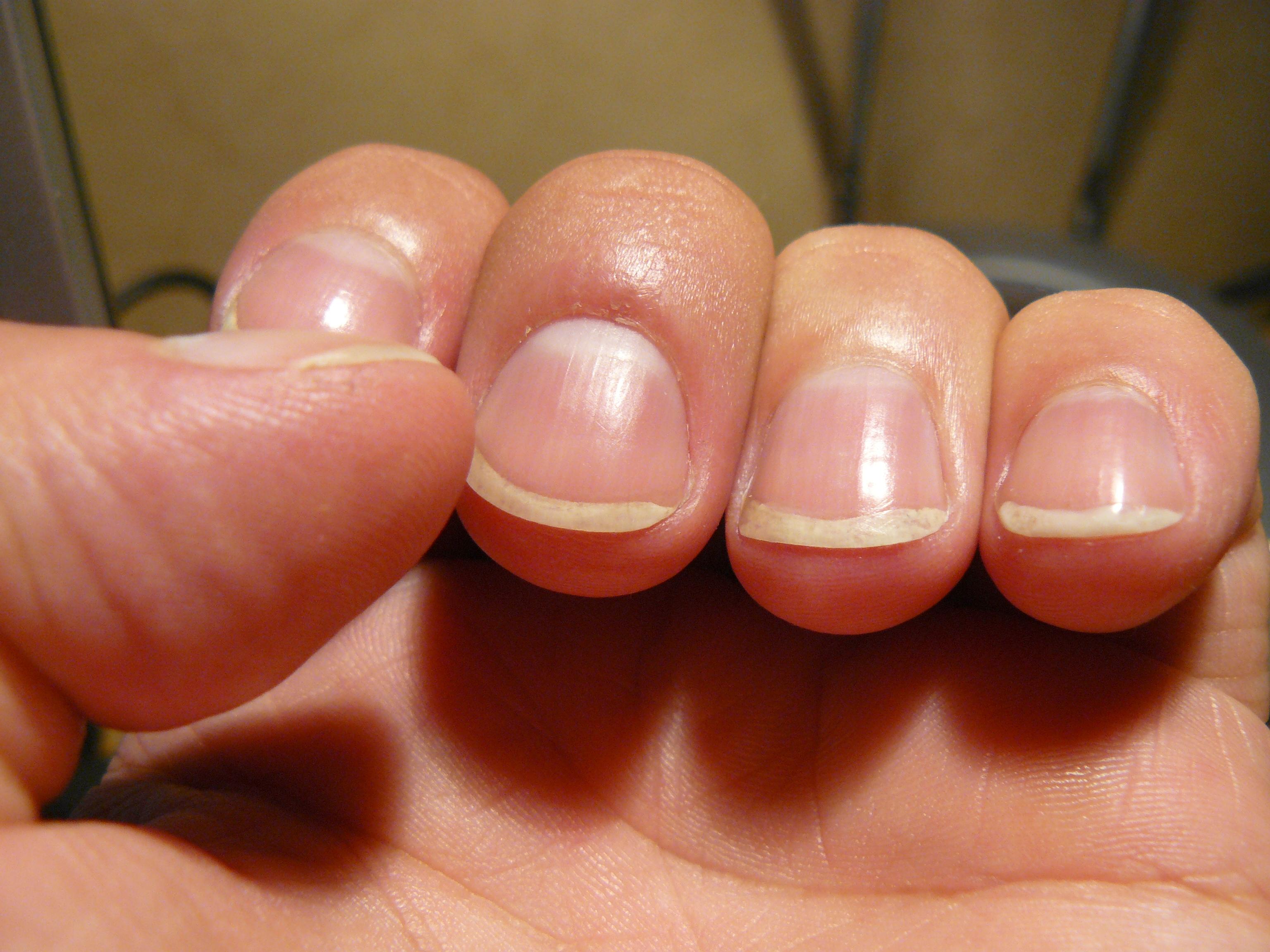 Les préparations contre le microorganisme végétal sur les ongles
